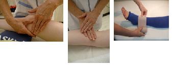 子宮がん術後・リンパ浮腫の改善